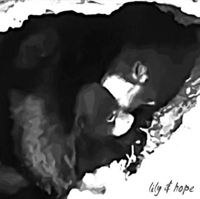 Lily & Hope - Jenny Lindell